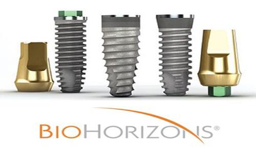 Thông tin về các loại trụ Implant hữu ích nhất cho bạn 3