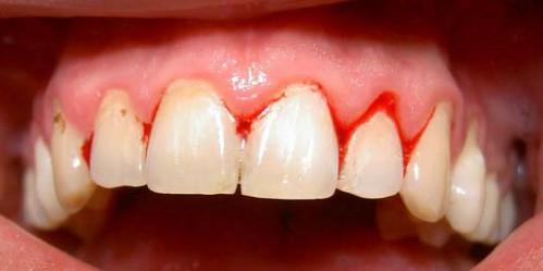 Cách làm chắc răng bị lung lay hiệu quả nhanh nhất