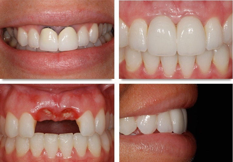 Giá trồng răng hàm trên là bao nhiêu tiền? [Bảng giá Mới 2018] 4
