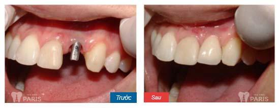 Nha khoa Paris - Địa chỉ làm răng nanh giả chất lượng tốt nhất