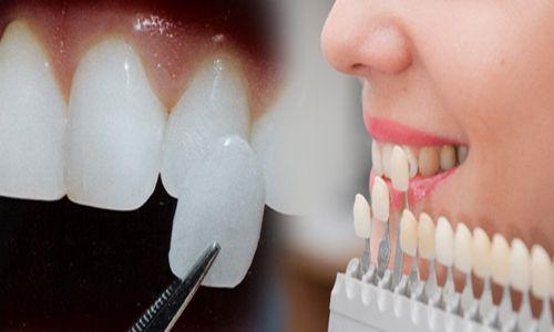 Đắp răng giả bằng sứ