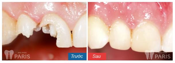 Những điều cần lưu ý sau khi làm răng sứ cho răng vỡ - Ảnh 1