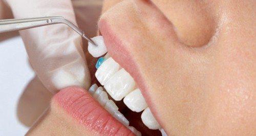 Mài răng giá bao nhiêu tiền, đắt hay rẻ?