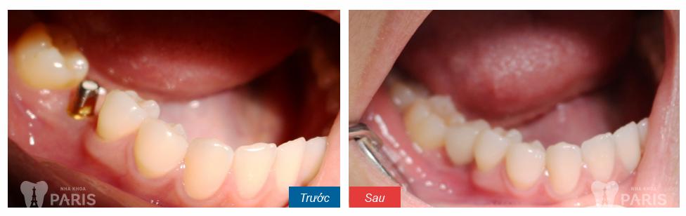 Trồng răng implant giá bao nhiêu cho 1 răng