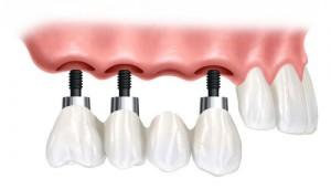 Trồng răng implant ở đâu tốt? BS tư vấn chi tiết
