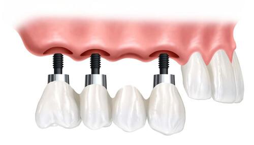 Giá Làm Cầu 4 răng trên Implant hết bao nhiêu tiền? 1