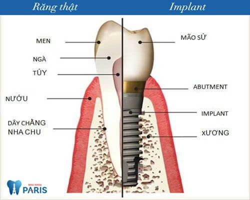 Răng Implant thay thế răng thật bị mất, ngăn ngừa tiêu xương hàm