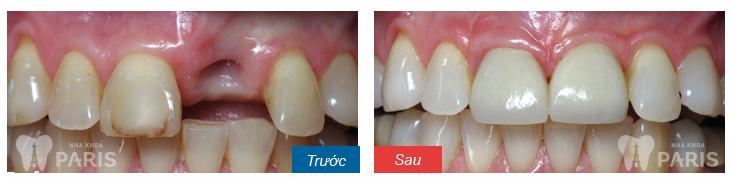 bị mất răng cửa làm cách nào để khắc phục