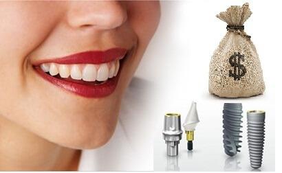 Trồng răng bao nhiêu tiền khi cấy ghép Implant? 1