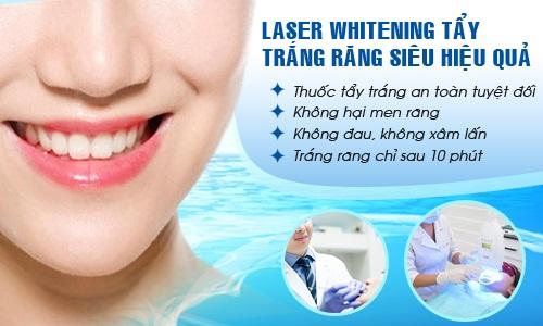 Tẩy trắng răng bao nhiêu tiền với phương pháp Laser Whitening