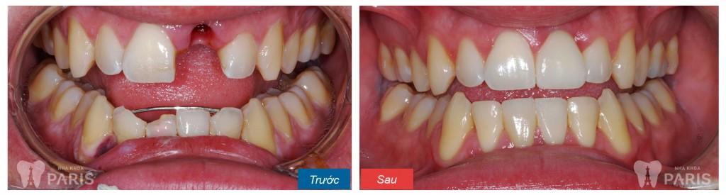 Trồng răng sứ Titan và 5 điều bạn nhất định phải biết! 2