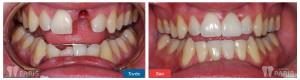 Trồng răng giả ở đâu tốt nhất hà nội hiện nay