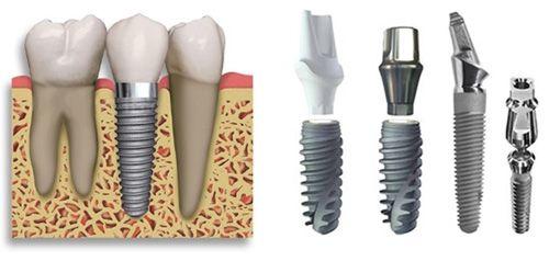 Tại sao cấy răng Implant cần có bác sỹ giỏi? - Nha khoa Paris 1