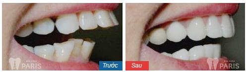Cách nào khắc phục 2 răng cửa bị vẩu nhanh nhất hiện nay?