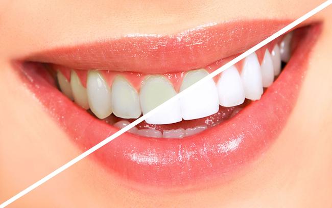 cách tẩy trắng răng hiệu quả nhất