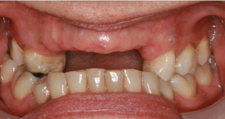 Cấy ghép răng Implant thẩm mỹ là gì? Quy trình trồng răng như thế nào? 4