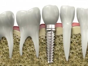 Trồng răng giả có đau không và có ảnh hưởng gì?[ BS tư vấn]