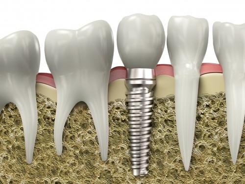Chi phí cấy răng implant bao nhiêu tiền? 1