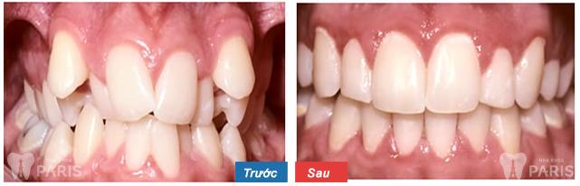 Mài cùi răng có đau không và biến chứng gì?【Chuyên gia tư vấn】-ảnh 1