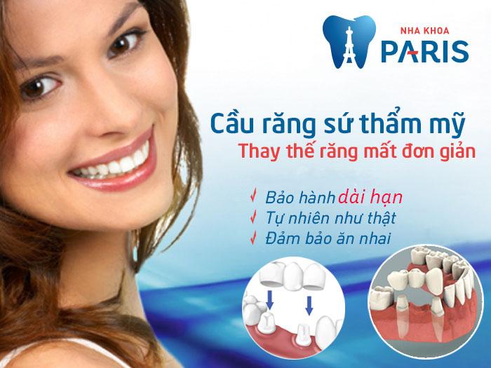 Làm cầu răng sứ công nghệ CT 5 chiều – Răng đẹp hoàn hảo