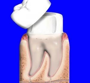 Làm răng sứ có đau không và hại gì không
