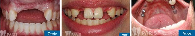Giá chụp răng sứ thẩm mỹ bao nhiêu tiền? Quá trình chụp răng sứ? 7