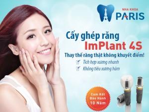 Thời gian trồng răng implant ít hơn khi thực hiện implant 4S