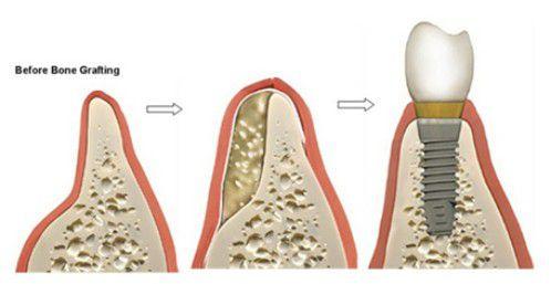 Trường hợp nào phải ghép xương trồng răng implant