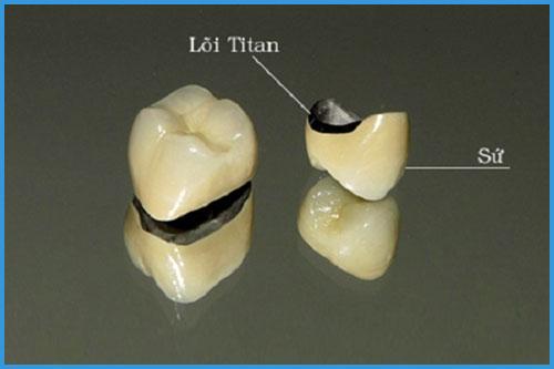 gia-boc-rang-su-titan-la-bao-nhieu-tai-nha-khoa-paris-1