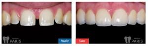 Cách khắc phục răng cửa bị thưa Mới Nhất năm 2016