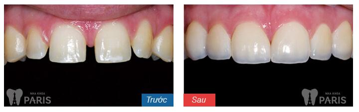 Cách chữa Răng Cửa Bị Thưa, Hở Kẽ NHANH CHÓNG chỉ sau 1 Lần 2