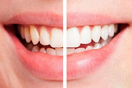 Làm trắng răng với lô hội hiệu quả