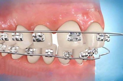 Cách chữa Răng Cửa Bị Thưa, Hở Kẽ NHANH CHÓNG chỉ sau 1 Lần 1
