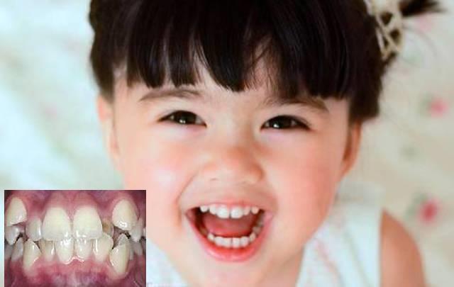 Răng mọc lệch ở trẻ em nên điều trị như thế nào?