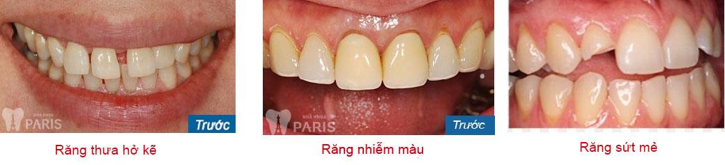 Giá chụp răng sứ thẩm mỹ bao nhiêu tiền? Quá trình chụp răng sứ? 6