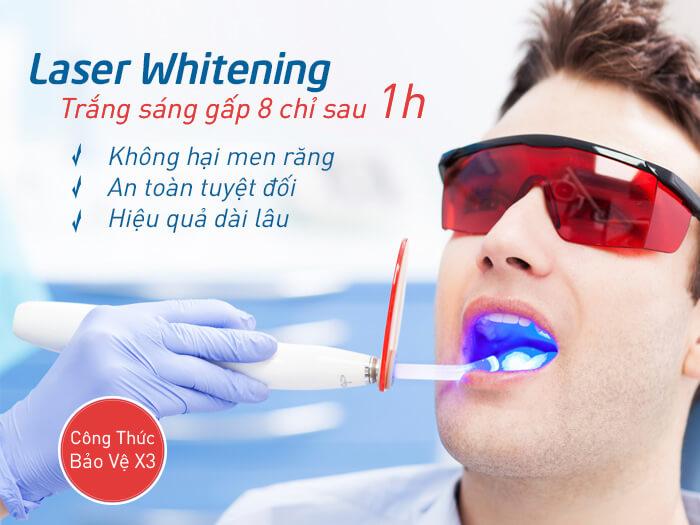 Tẩy trắng răng Laser Whitening vượt trội hơn so với miếng dán trắng răng Crest 3D