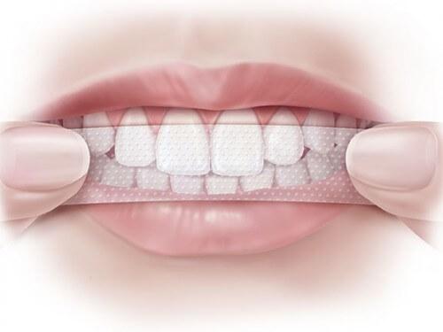 Vì sao miếng dán trắng răng Crest 3D lại được ưa chuộng?