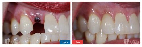 Cảnh báo những hậu quả nghiêm trọng khi mất răng lâu năm 6