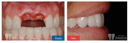 Trước và sau khi trồng răng implant 2