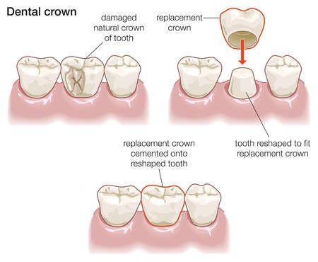 Cách mài cùi răng sứ đảm bảo an toàn, hiệu quả nhất 2