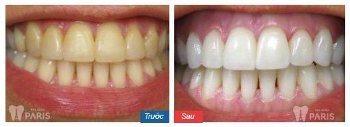 Đắp răng giả bằng sứ cho răng nhiễm màu