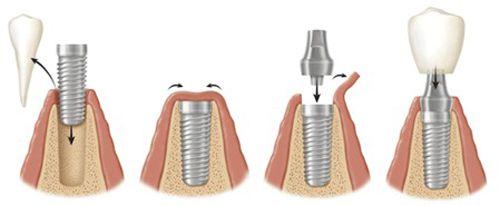 Implant nha khoa và những điều cần biết 2