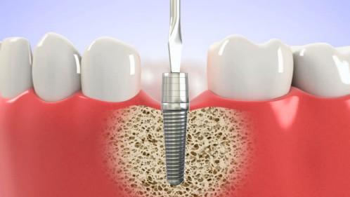 Một số lưu ý khi cắm răng implant bạn cần biết