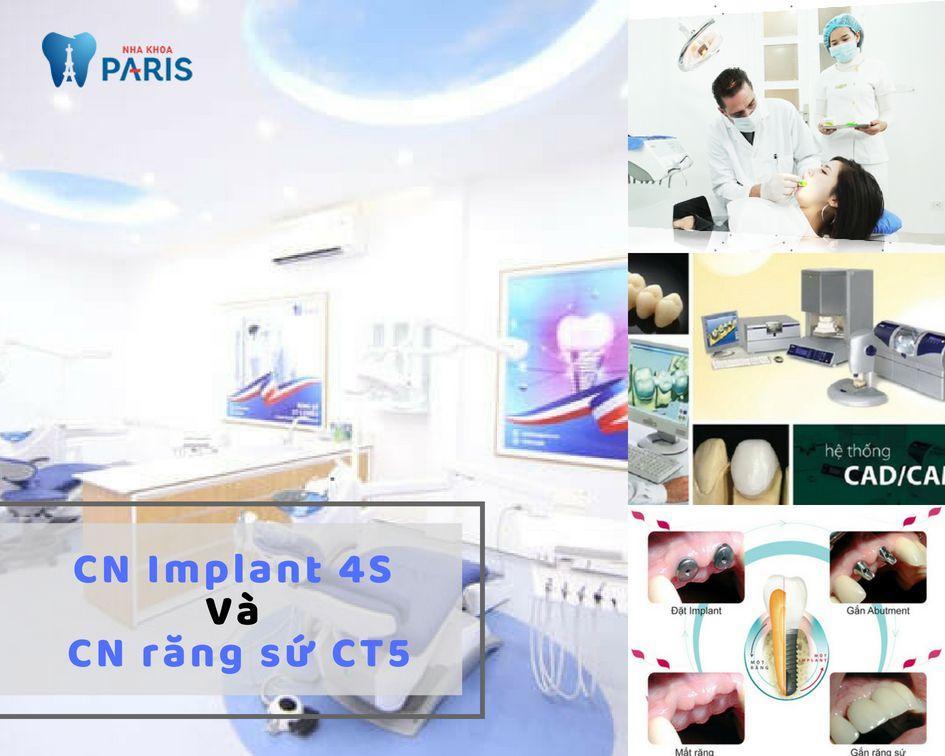 Công nghệ Implant 4s và Công nghệ răng sứ CT5
