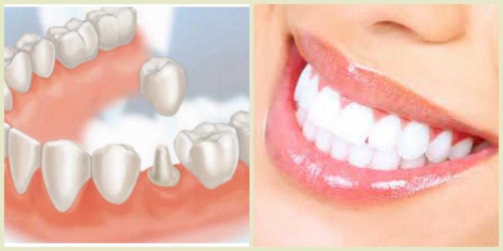 Giải đáp thắc mắc: Mài răng có ảnh hưởng gì không? 2