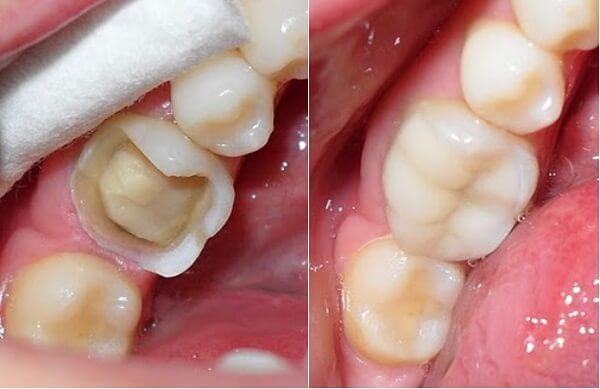 Chụp răng sứ ở đâu tốt và uy tín