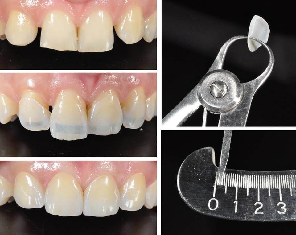 Giá làm răng Veneer sứ