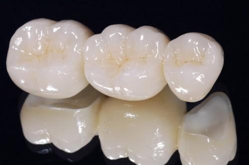 Giá răng sứ