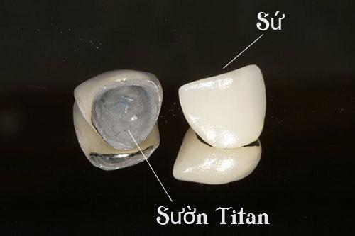 Răng sứ titan giá bao nhiêu tại Nha khoa Paris? 1