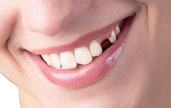 Làm răng giả có đau không
